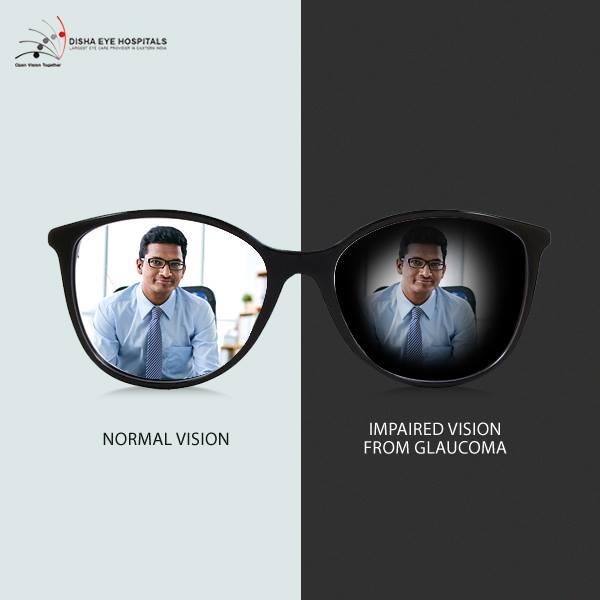 glucoma vision