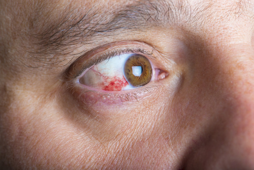 eye injury risk from water stream Eye trauma can be very dangerous because the eye does not often heal well   caustic lye and acid burns need a steady stream of water on the eye for  other  doctors believe that the risk of infection increases when an eye patch is used.