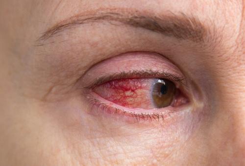 Disha Eye Hospital