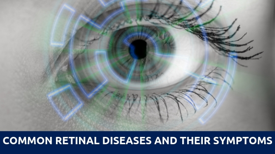 Common retinal diseases and their symptoms