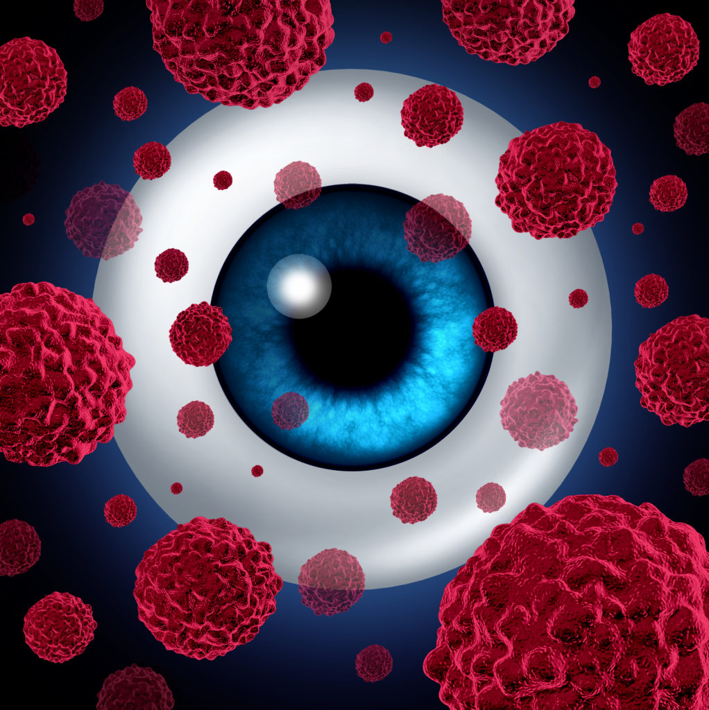Ocular melanoma 10 important things to know